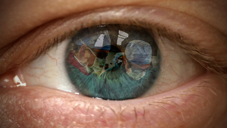 Cataract_surgery_composite_2b